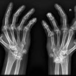 LaBrujulaVerde-artritis